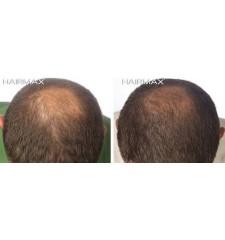 HairMax - laserski glavnik LUX 9