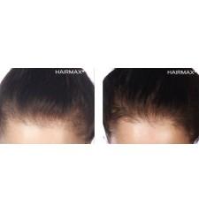 HairMax - profesionalni laserski glavnik 12