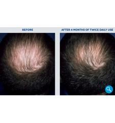 Rogaine (Regaine) za moške ® pena 5% minoxidil - 3 mesečni tretma